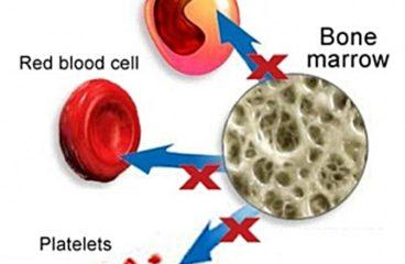 एनीमिया Anemia के लक्षण , कारण और ईलाज