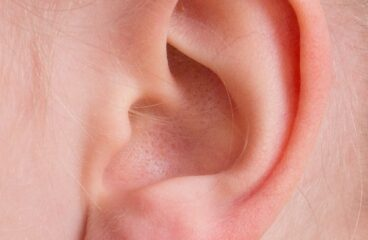 Otorrhoea कान का बहना
