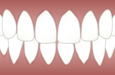 दाँत दर्द Toothache
