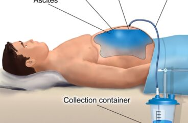पेट में पानी- जलोदर Ascites