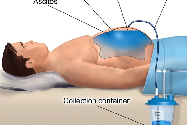 homeopathy treatment ascites