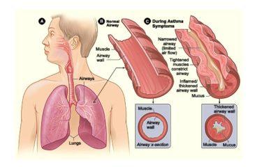 दमा Asthma