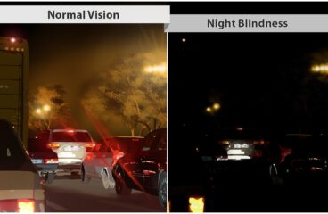 रतौंधी ( Nyctalopia  or Night blindness)